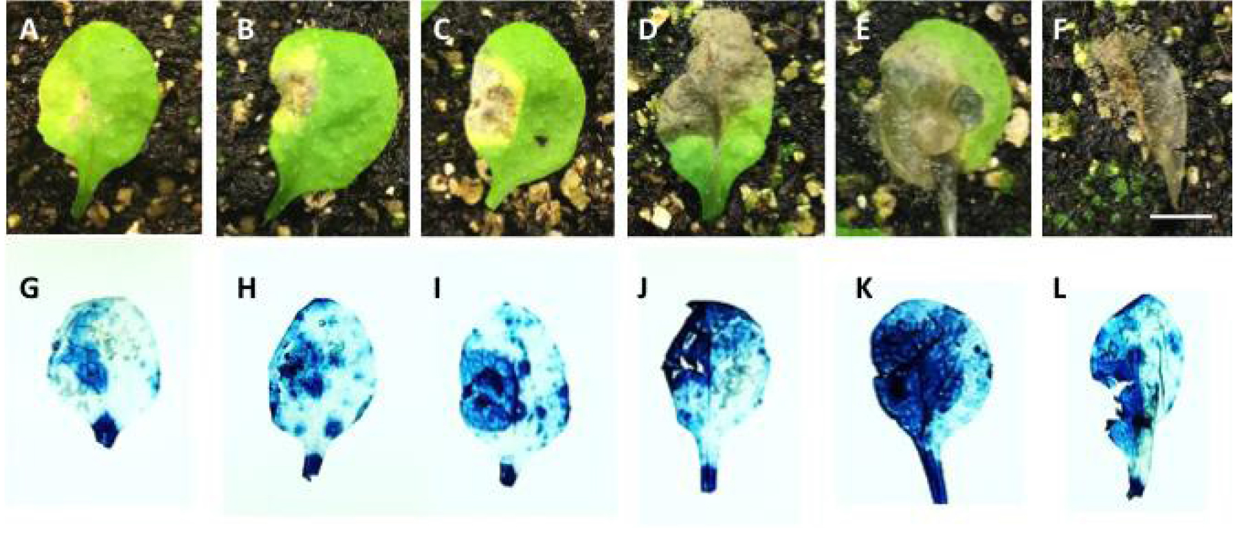 Plant Tissue Trypan Blue Staining During Phytopathogen