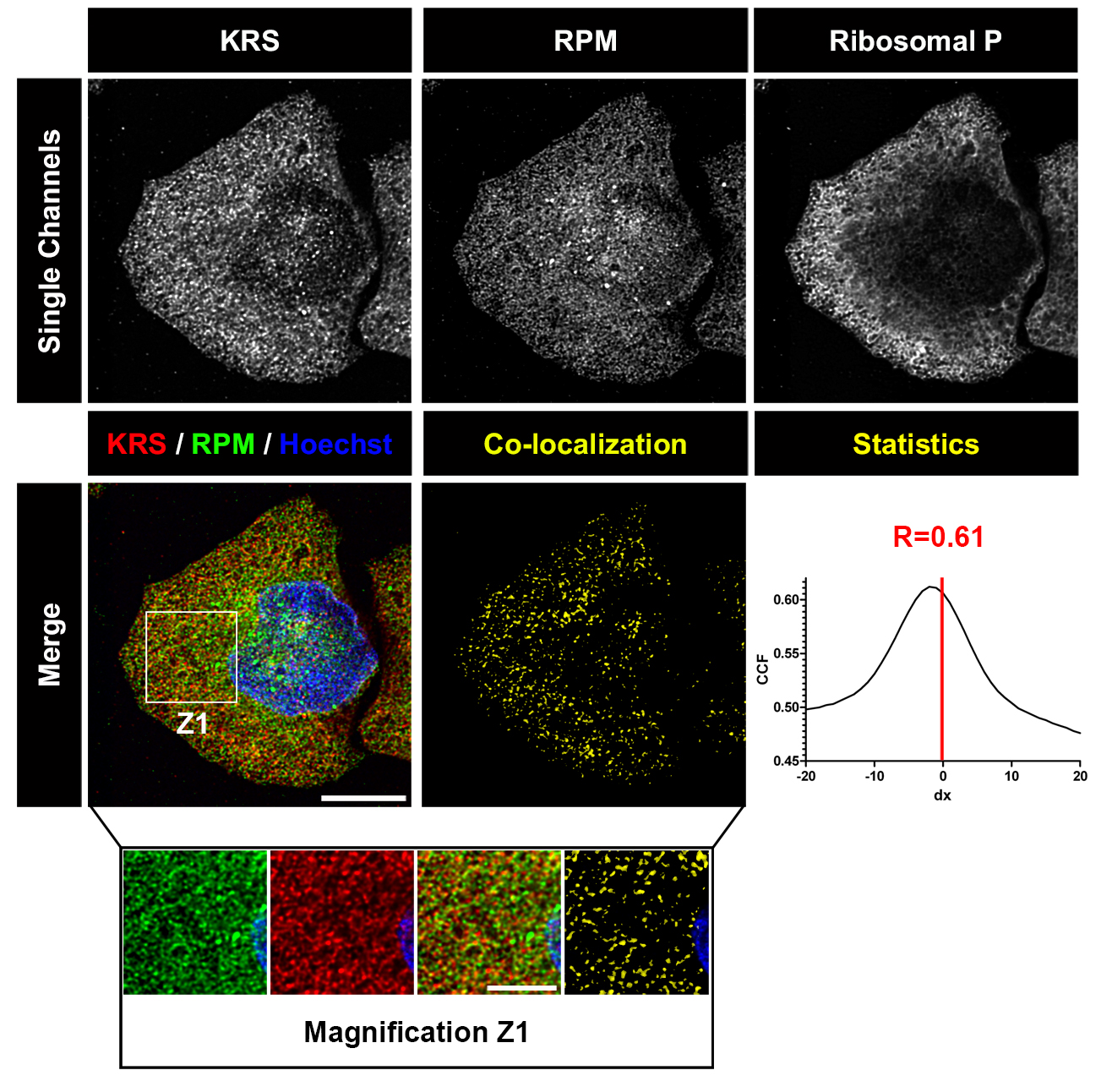 The RiboPuromycylation Method (RPM): an Immunofluorescence
