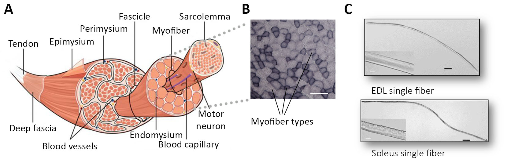Isolation and Transcriptomic Profiling of Single Myofibers